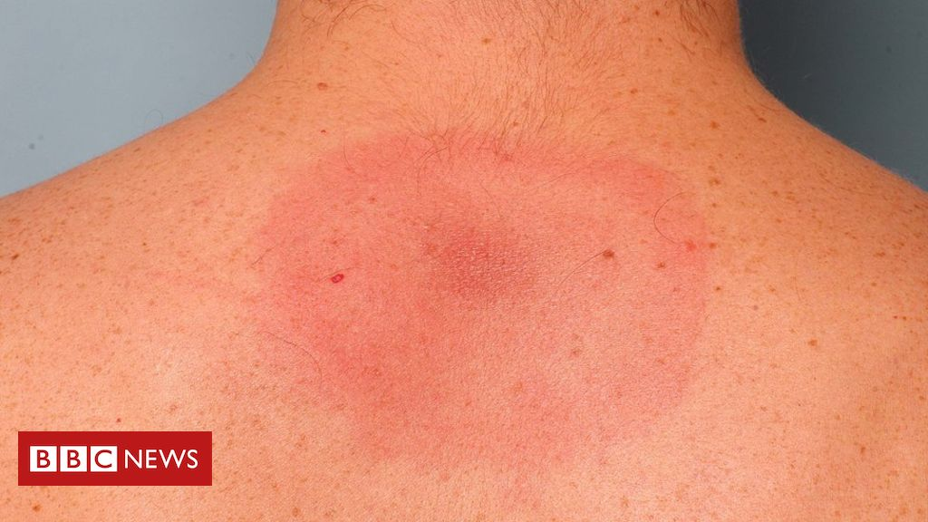 CBD against Lyme Disease